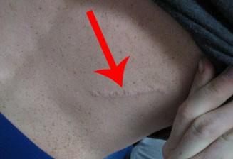 Scar Face, Leg or Arm